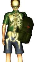 Desalignement des hanches