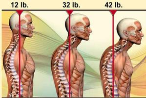 Poids sur la colonne vertébrale