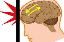 Participez à une étude sur les commotions cérébrales dans le sport